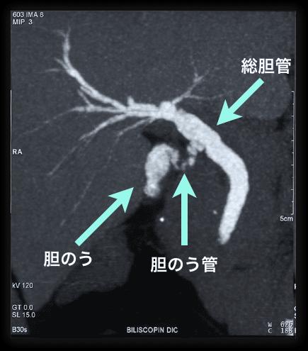 胆嚢 摘出 手術 費用